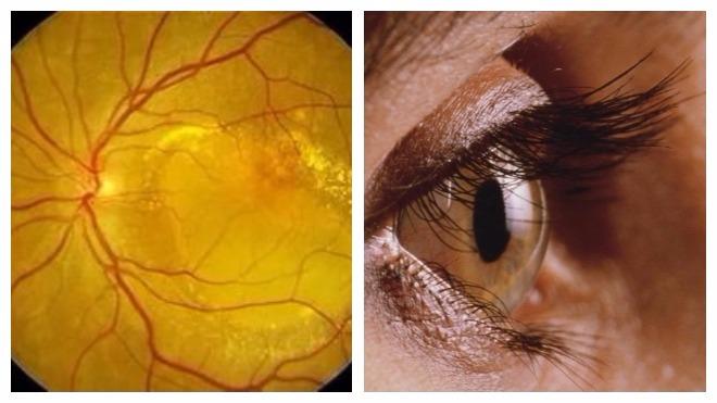 Макулодистрофия сетчатки глаза - лечение