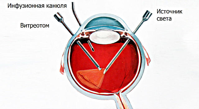 Микроинвазивная витрэктомия - операция на глазах