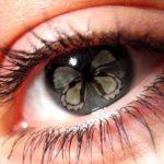 Мушки перед глазами — причины и лечение
