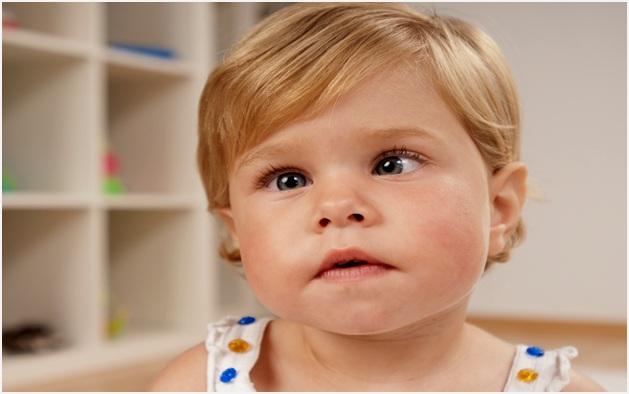 Нельзя игнорировать косоглазие у ребенка