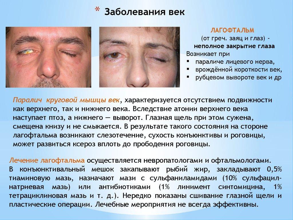 Неполное закрытие глаза. Возникает при параличе лицевого нерва, врождённой короткости век, рубцевом вывороте век и др.