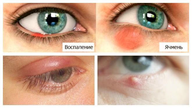 Отличие воспаления глаза от ячменя