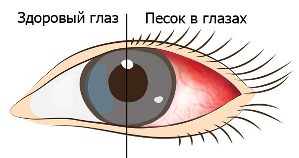 Песок в глазах и здоровый глаз