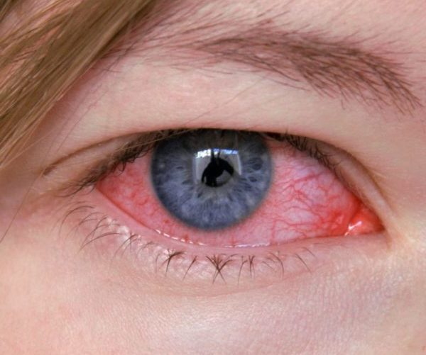 Кератит глаза народными средствами