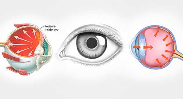 Глазное давление симптомы и лечение препараты