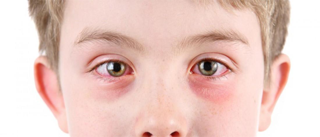 Покраснение глаза у ребенка лечение в домашних условиях быстро