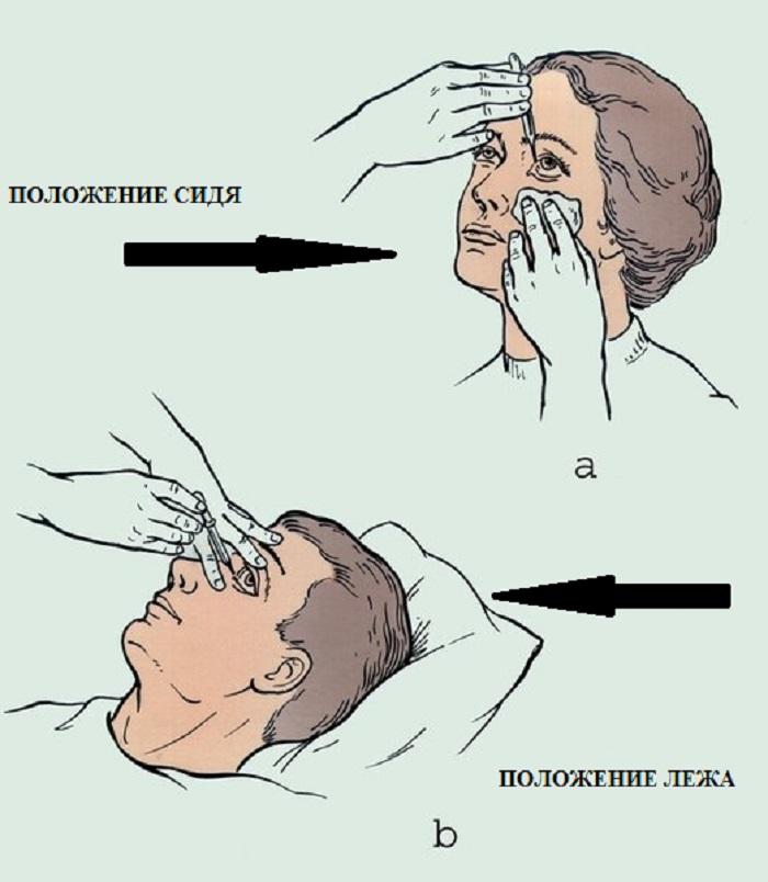 Положения для закапывания глаз