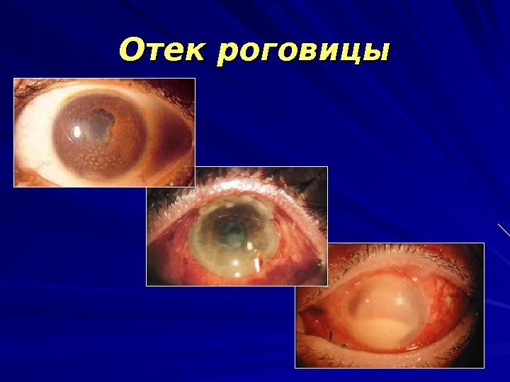 Послеоперационный период может сопровождаться отеком роговицы, который в норме проходит через 3-5 дней