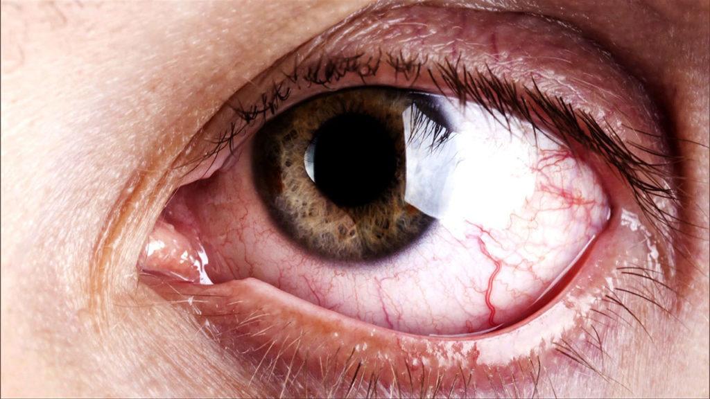 Причиной рези может быть инфекция
