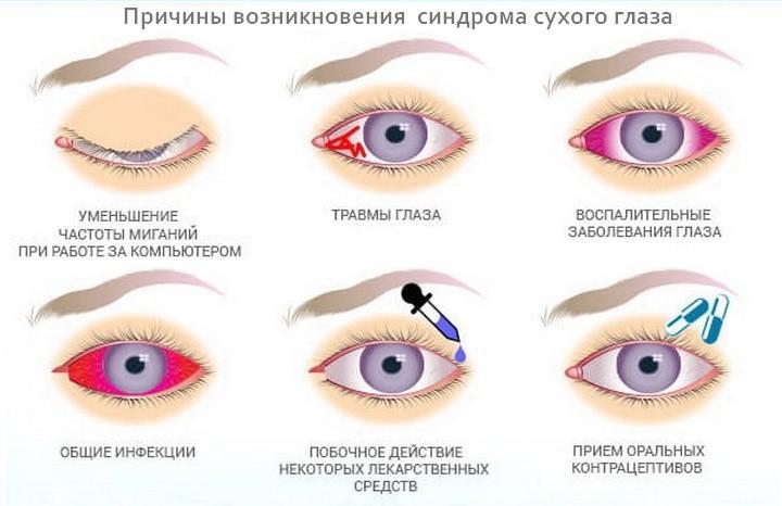 Причины развития синдрома сухого глаза