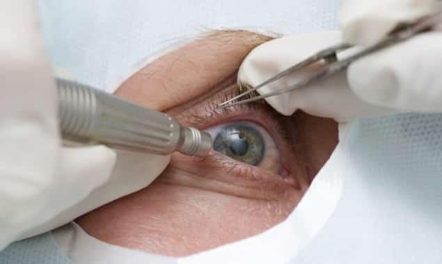 Проведение хирургической операции