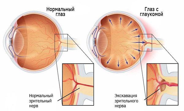 Развитие глаукомы - атрофия зрительного нерва