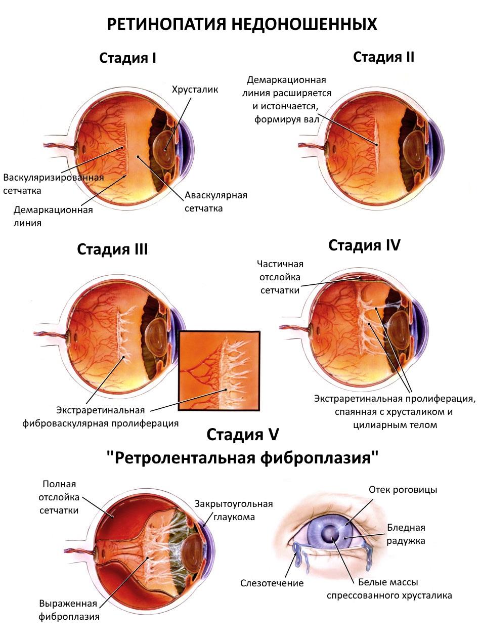 Ретинопатия недоношенных - стадии