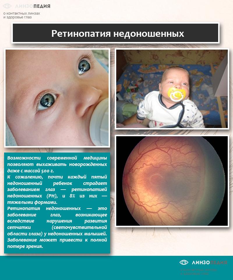 Ретинопатия недоношенных