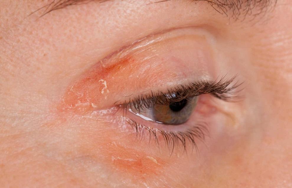 Симптомы ресничного клеща