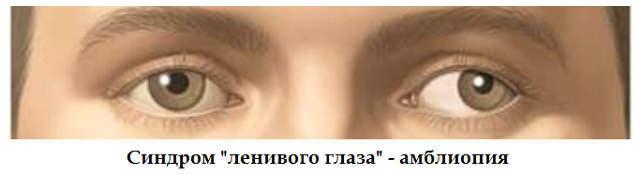 Синдром «ленивого глаза» у детей