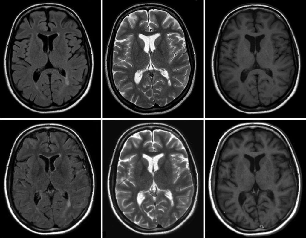 Снимок томографии головного мозга