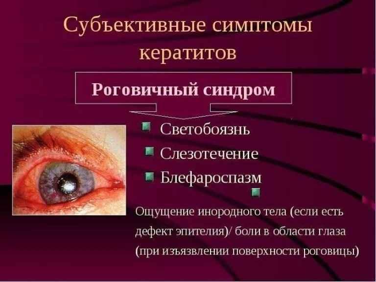 Субъективные симптомы кератитов