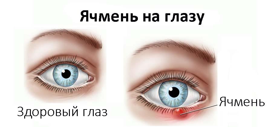 Схема здорового глаза и глаза с ячменем
