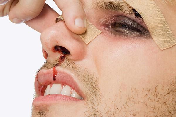 Травма носа — самое распространённое повреждение в области лица