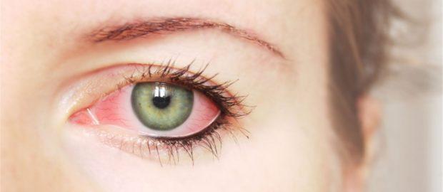 Увлажняющие капли помогают устранить синдром «сухого глаза»