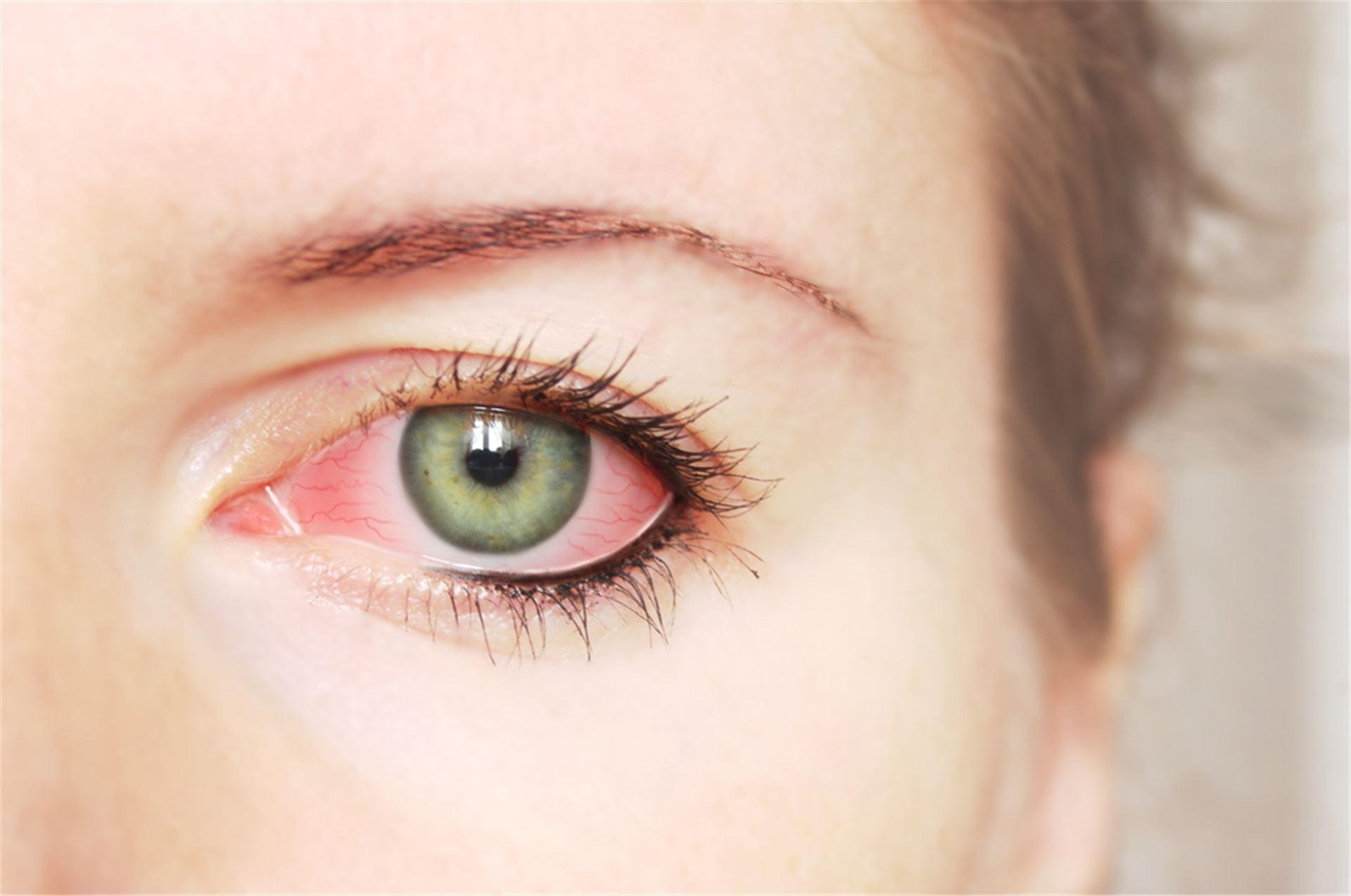 Глазные капли от сухости и усталости глаз