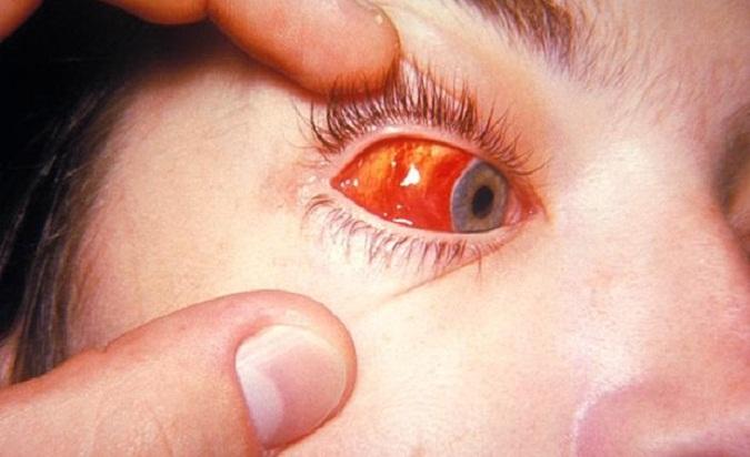 Фото кровоизлияния