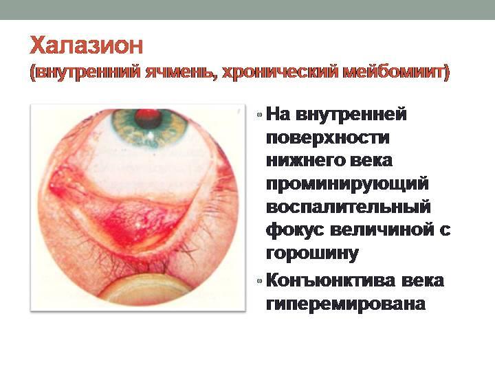 Халазион (внутренний ячмень, хронический мейбомиит)