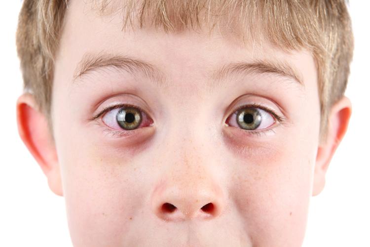 чем промывать глаза при гнойном конъюнктивите