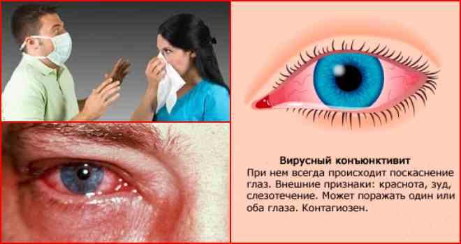 Что такое вирусный конъюнктивит