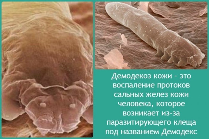 Что такое демодекоз кожи