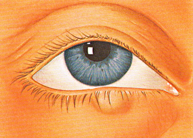 Шишка на веке глаза