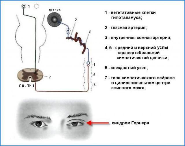 Эта триада симптомов обозначается как синдром Горнера (или синдром Клода-Бернара-Горнера)