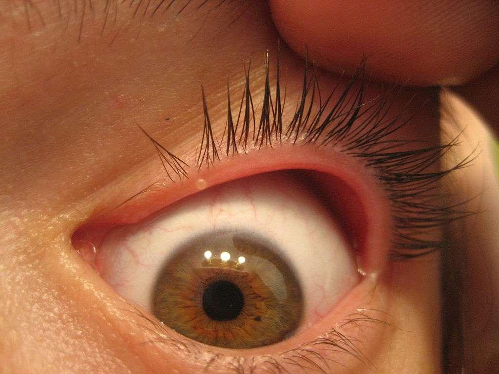 Ячмень - инфекционное заболевание глаз с острым протеканием воспалительного процесса