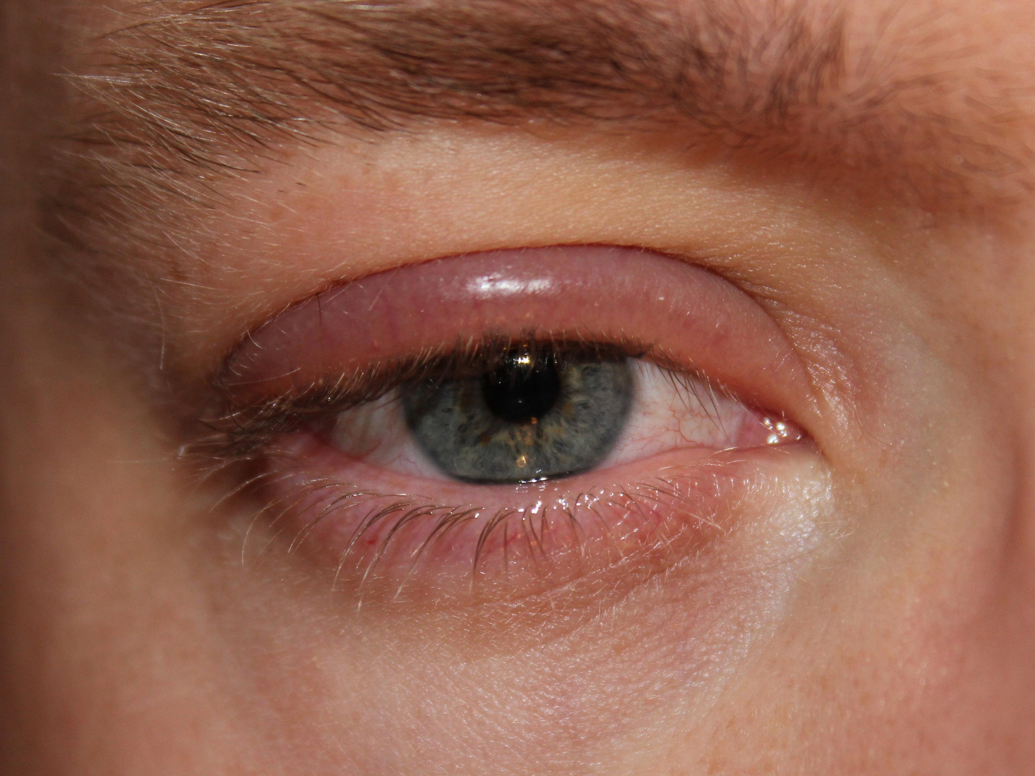 Успех лечения инфекционных офтальмологических заболеваний зависит от своевременного начала лечения и скрупулёзного соблюдения гигиенических привычек