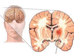 Травмирование нервной системы