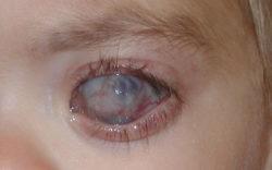 Глаукома и отслоение сетчатки