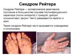 Вызванный болезнью Рейтера