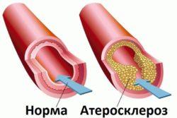 Атеросклероз, дислипидемия, ожирение