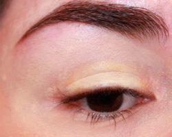 Чрезмерно жирная кожа вокруг глаз