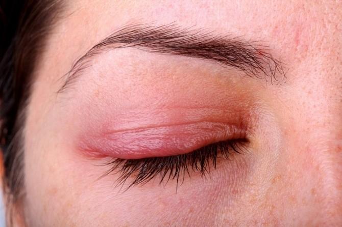 Аллергия на глазу