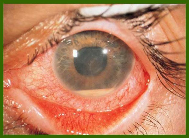 Иридоциклит: что это за заболевание и каковы причины его возникновения