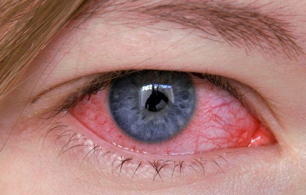 Аденовирусный конъюнктивит - симптомы и лечение