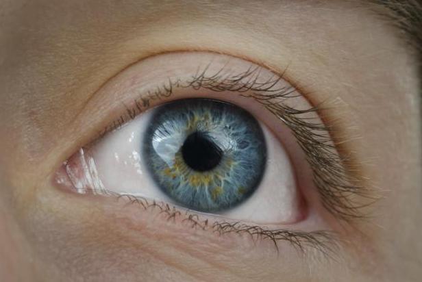 Артифакия глаза - что это и как лечить