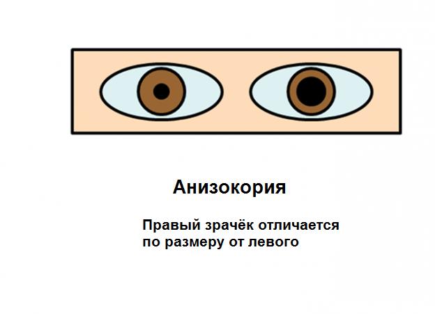 Асимметрия размера зрачков глаз