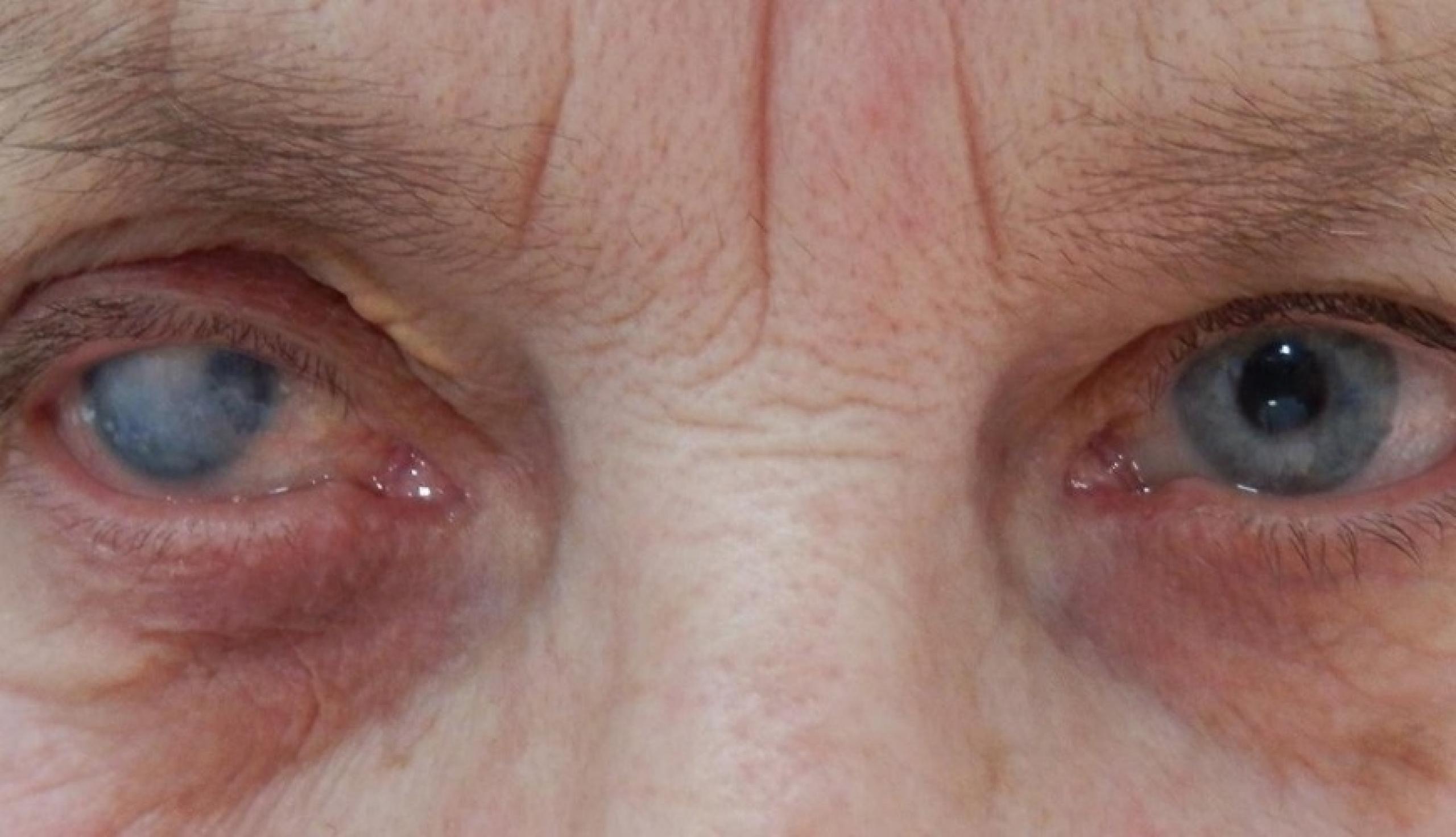 Особенности лечения бельма на глазу