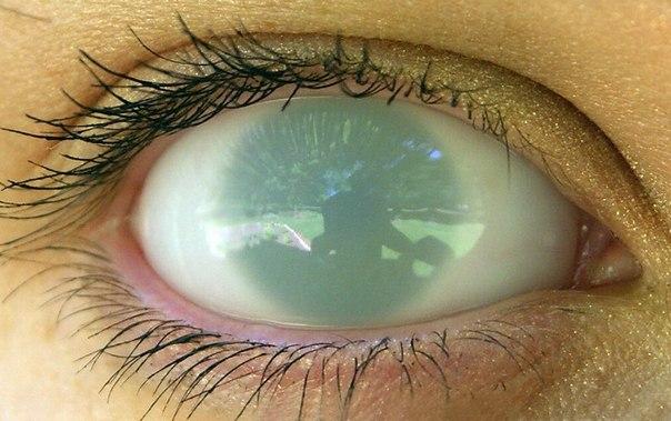 Бельмо на глазу человека