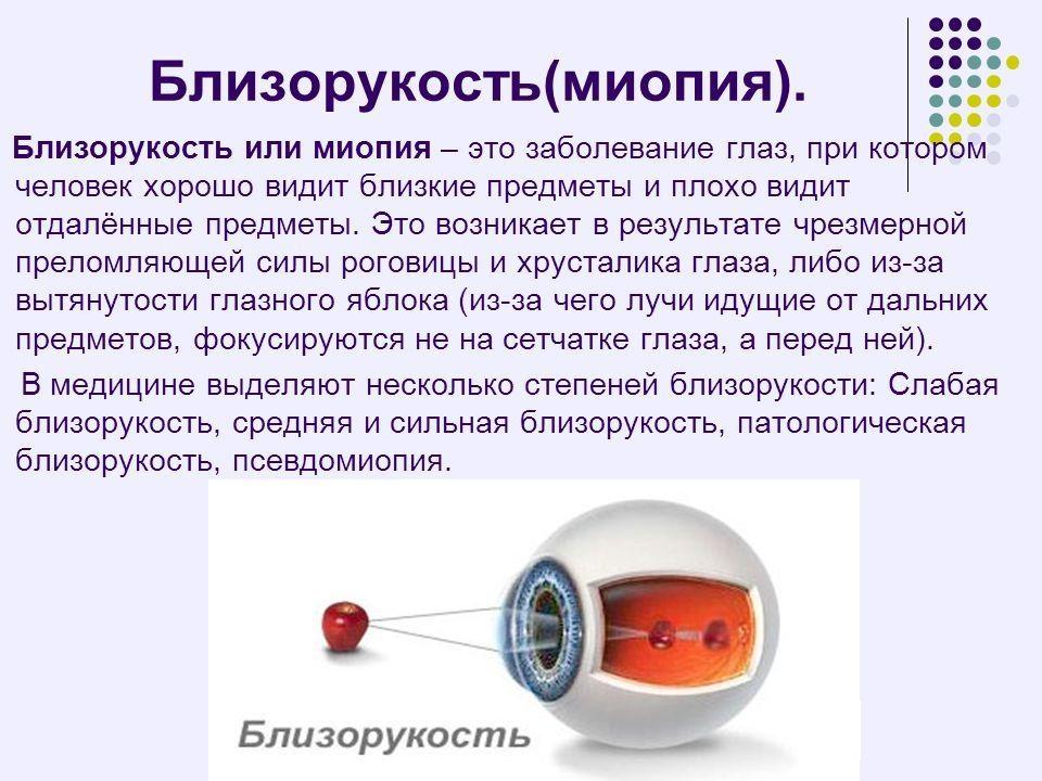 Близорукость (миопия)