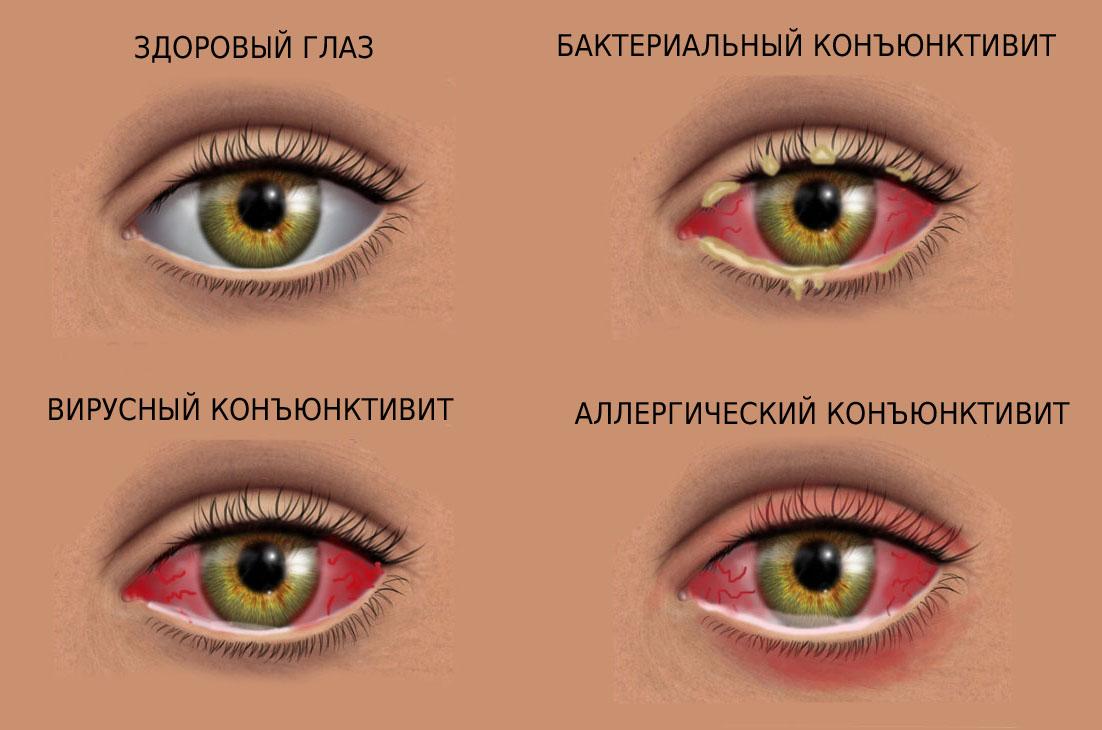 Виды конъюнктивита в зависимости от этиологии