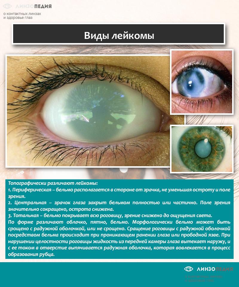 Виды лейкомы